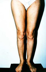 After treatment with Ultrasound Guided Sclerotherapy