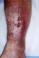 Leg Ulcer Before Treatment