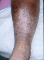 Leg ulcer after treatment