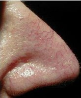 Telangiectasia before laser